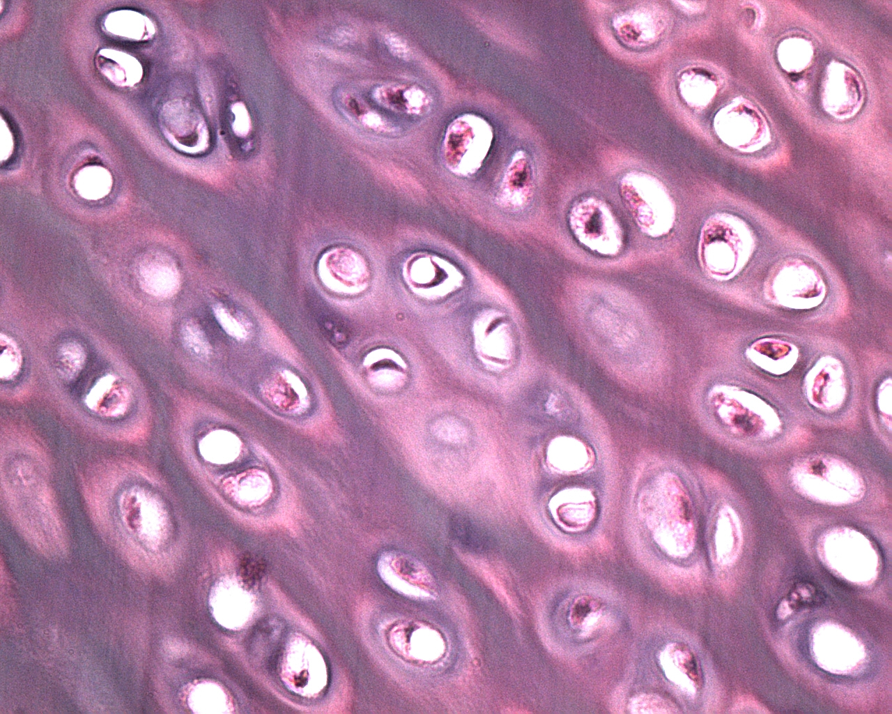 cartilage tissue Articular cartilage is a stratified tissue with distinct layers expressing different  protein types/amounts and having different cell morphologies research.